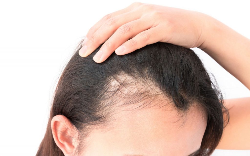Best Tips for Hair Regrowth